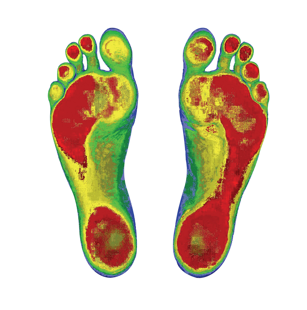 Colored Soles of Feet Showing a the Distribution of Weight on the Soles of the Feet